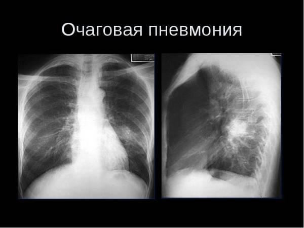 Воспаление лёгких у новорожденных