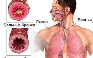 Хронический бронхит и симптомы у взрослых