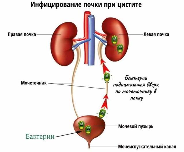 Лечение и профилактика послеоперационного воспаления легких