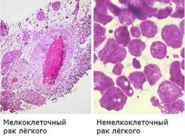 Рак легких: как развивается, признаки и проявления, как выявить, лечение, выживаемость