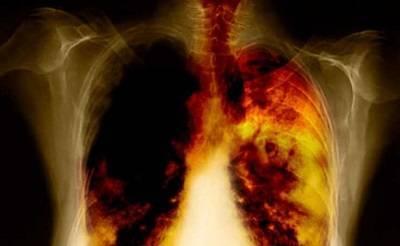 Чем лечить бронхит курильщика
