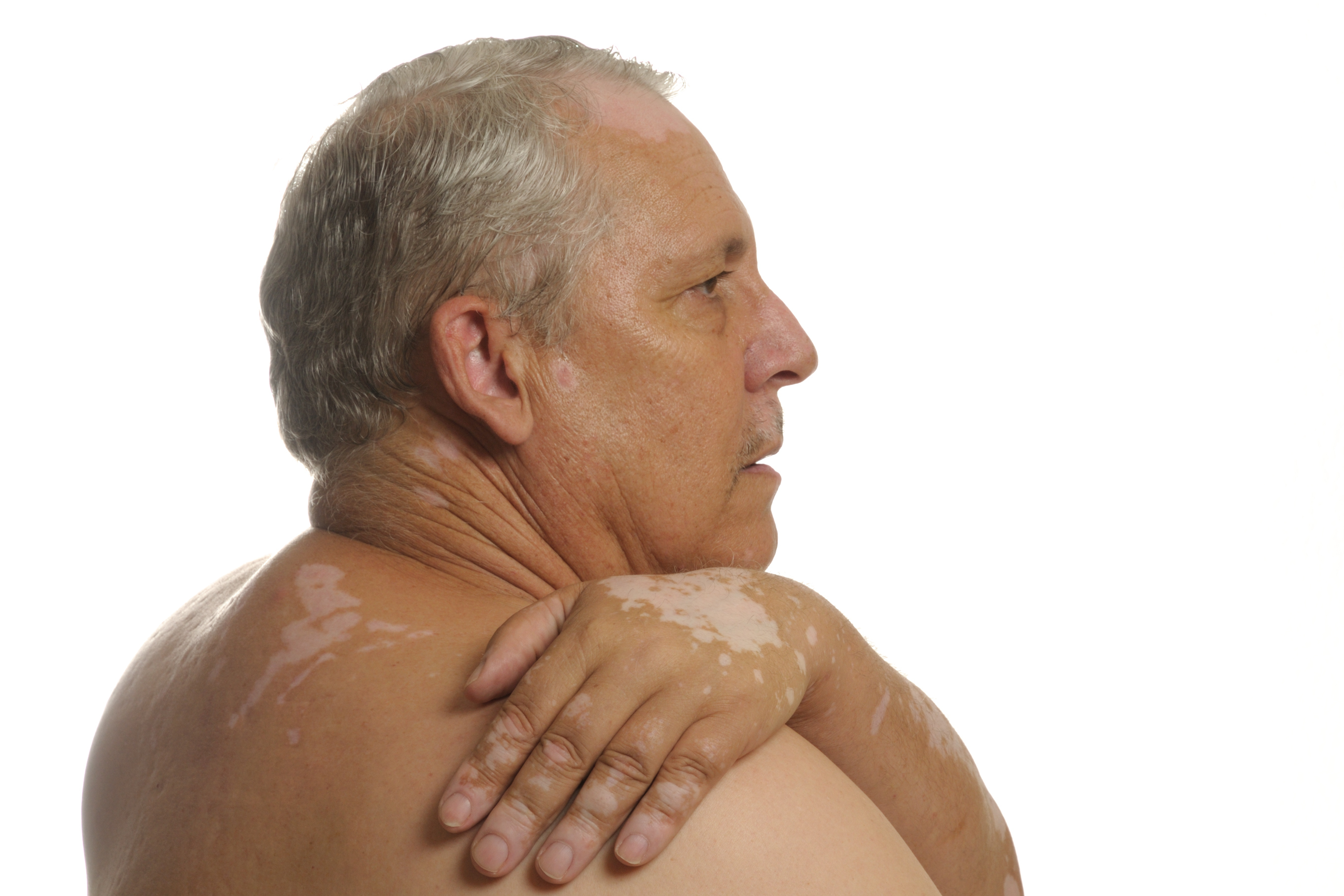 Как лечить псориаз кожи (чешуйчатый лишай) у человека?