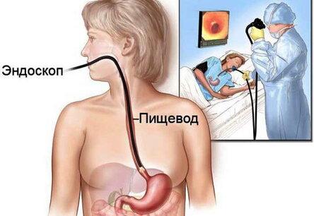 Дуодено-гастральный рефлюкс (дгр) – что это, причины, симптомы и лечение у взрослых
