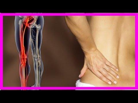 Люмбоишиалгия - причины, симптомы и лечение