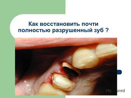 Штифты для зубов: особенности, виды, стоимость