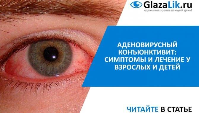 Лучшие глазные мази от конъюнктивита – обзор 14 наименований