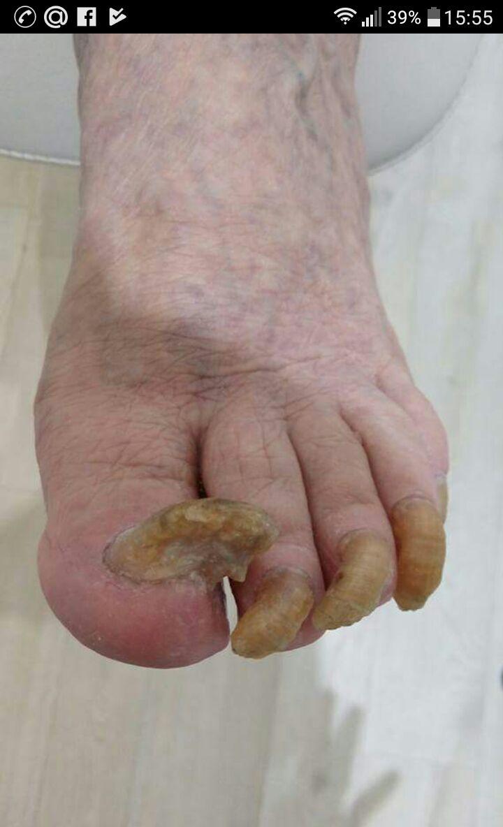 Симптомы и лечение онихомикоза ногтей на руках и ногах: недорогие, эффективные препараты