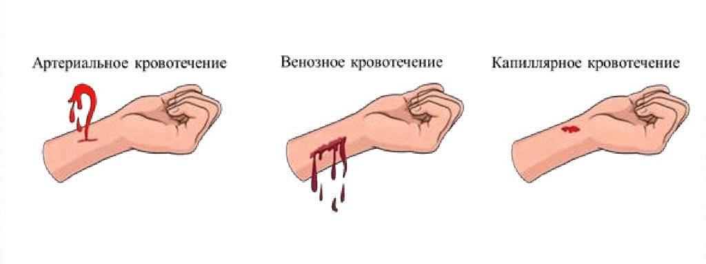 Внутреннее кровотечение