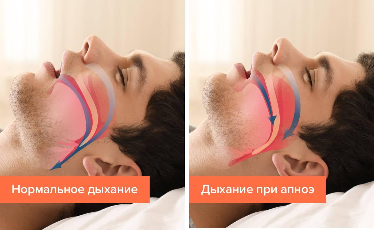 Апноэ — временная остановка дыхания во сне, при которой можно не проснуться