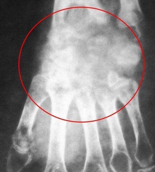 Признаки туберкулеза костей у взрослых