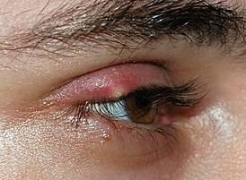Как вылечить халязион на глазу