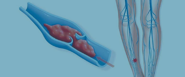 Флебит нижних конечностей (воспаление вен на ногах): симптомы и фото, лечение и прогноз