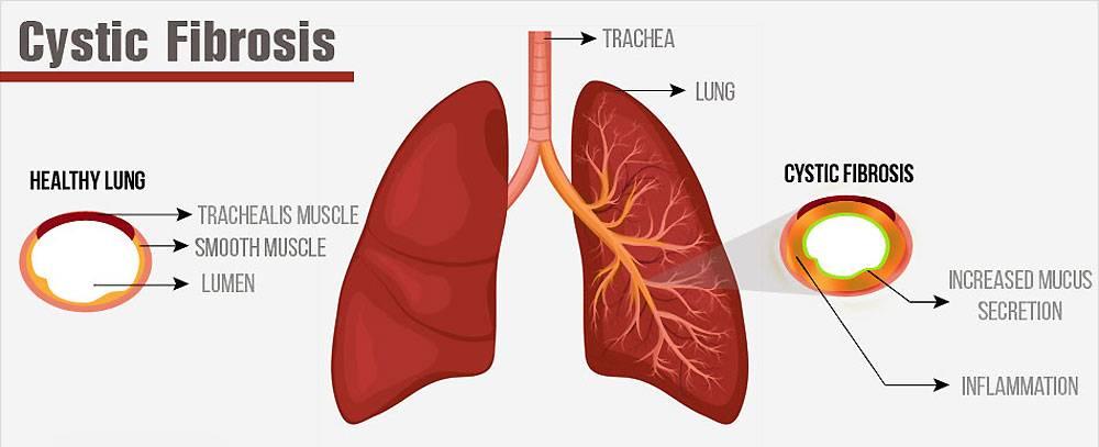 Фиброз легких - что это такое? чем  опасно заболевание?