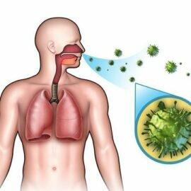 Пути передачи: заразна пневмония или нет и можно ли подхватить болезнь через поцелуй?