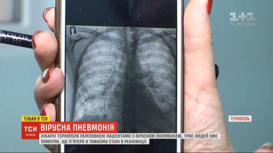 Как долго лежат в больнице с пневмонией взрослые