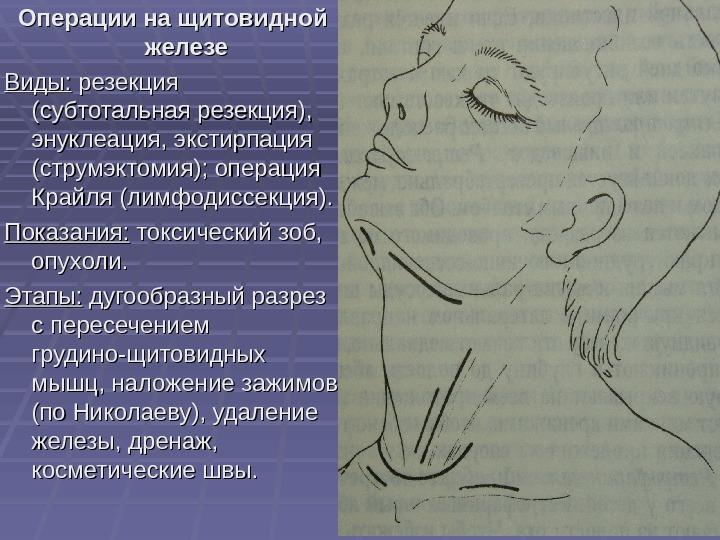 Где находится щитовидная железа, и как можно проверить щитовидку в домашних условиях?