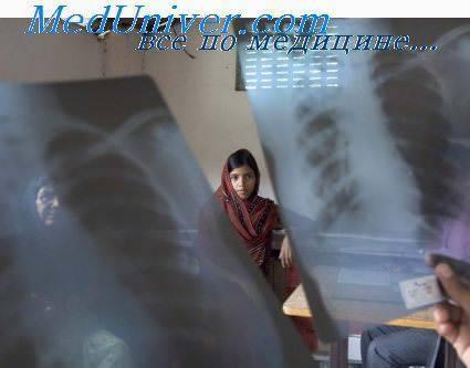 Отличие туберкулеза от рака легкого
