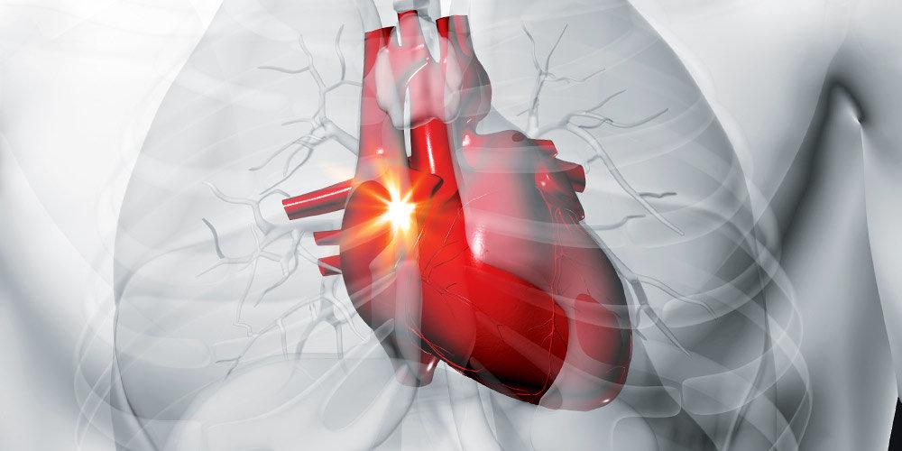 Как отличить сердечный кашель от аллергии и инфекции