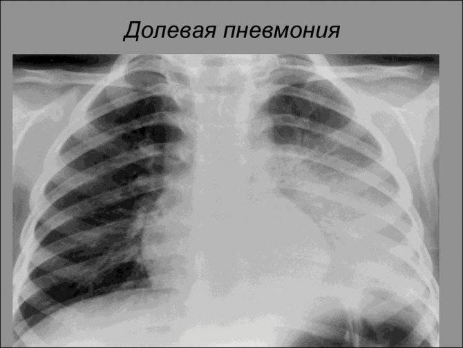 Пневмония у новорожденных и недоношенных детей: симптомы, прогноз, причины, лечение