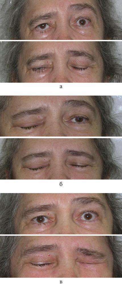 Неврит лицевого нерва (паралич белла) – симптомы и лечение, массаж