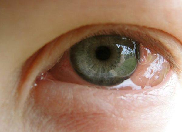 Аллергический конъюнктивит: причины, симптомы и лечение