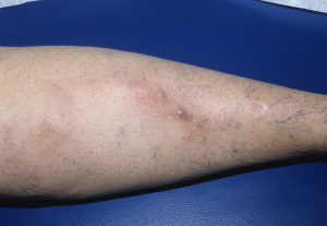 Флебит нижних конечностей симптомы и лечение, фото