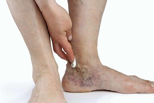 Лечение трофических язв нижних конечностей в домашних условиях