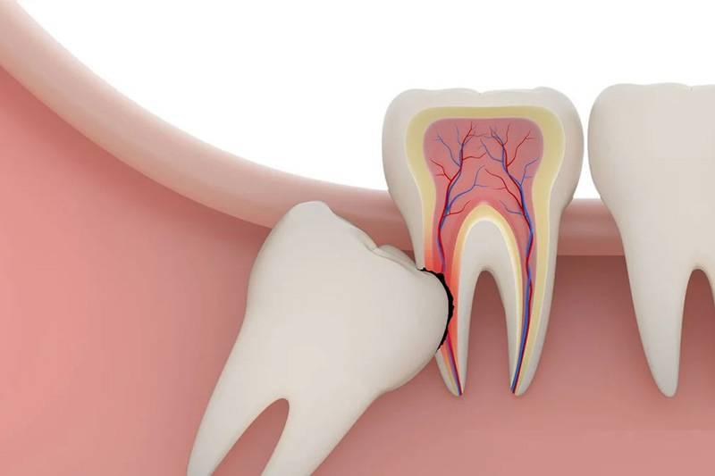Чем опасно удаление зуба мудрости
