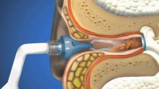 Серные пробки в ушах: как правильно удалить