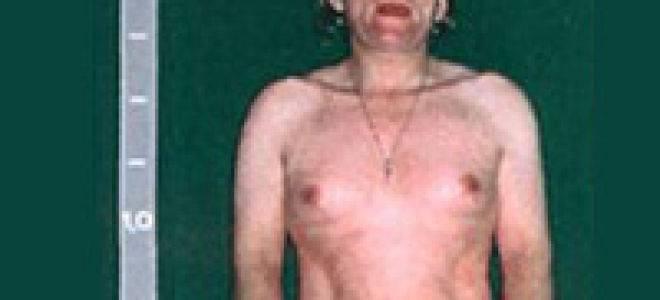Адреногенитальный синдром: что это такое. причины, симптомы и лечение адреногенитального синдрома |             эко-блог