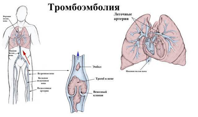 Почему при простуде появляется кашель с кровью