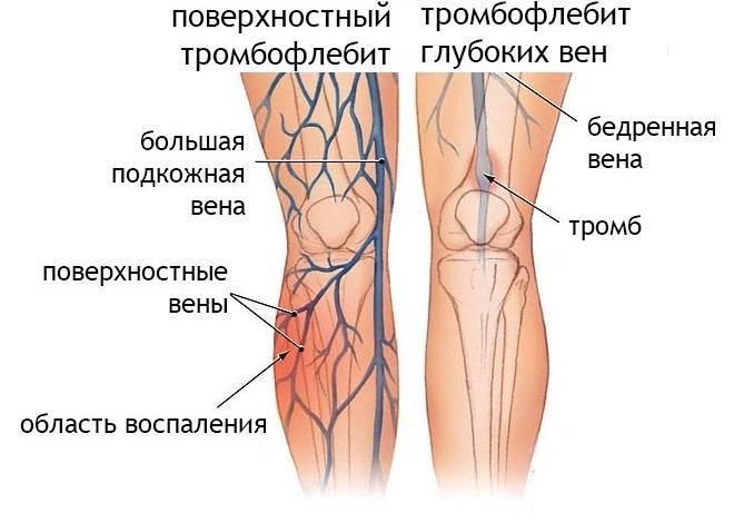 Флебит (воспаление вен) рук и нижних конечностей: развитие, симптомы, лечение