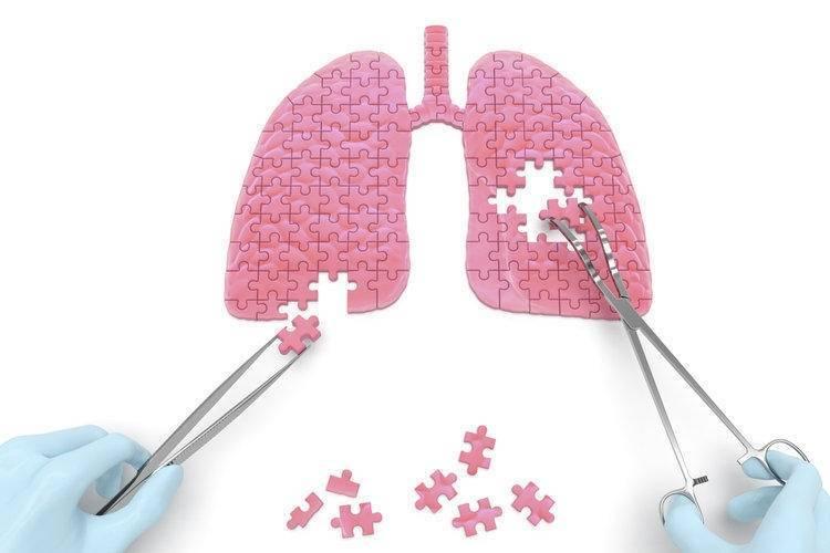Кашель при онкологии, его характеристики и особенности лечения