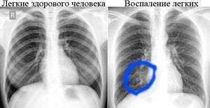 Пневмония на рентгене