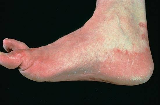 Микоз кожи, стоп и рук: фото симптомы и лечение