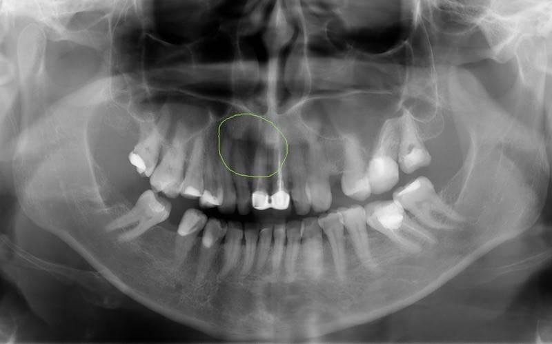 Киста гранулема корня зуба
