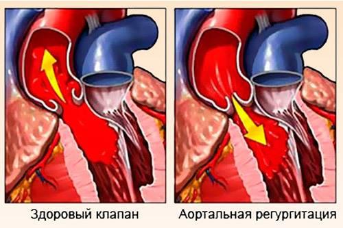 Физиологическая регургитация трикуспидального клапана