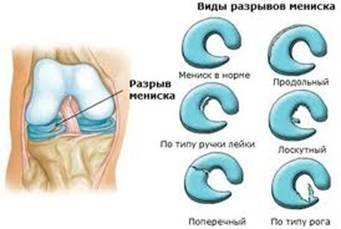Лечение повреждения латерального мениска коленного сустава