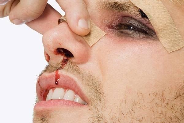 Как при травме определить перелом носа или ушиб?