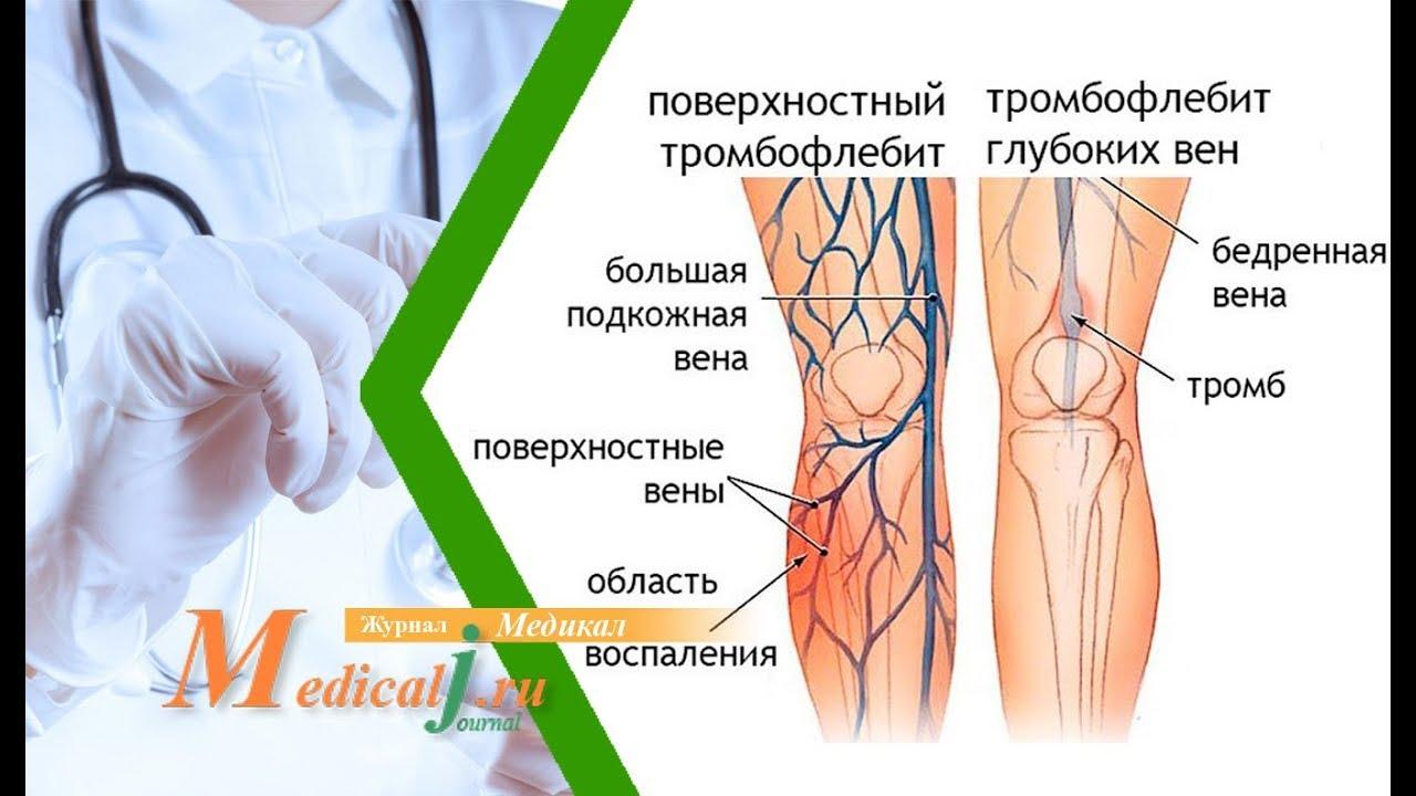 Флебит вены на руке лечение после катетера