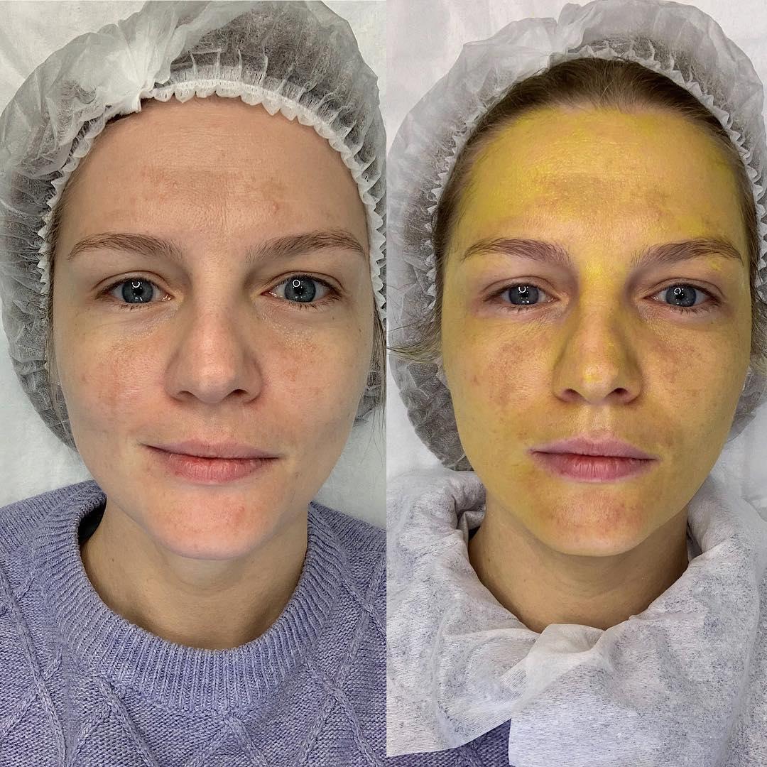 Желтый цвет кожи у взрослого причины. причины пожелтения кожи и разновидности желтухи
