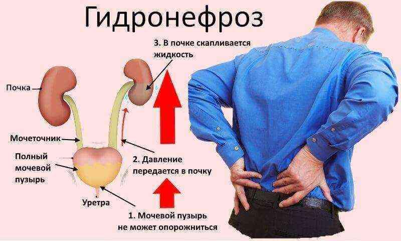 Правильное питание при гидронефрозе. полезные и опасные продукты при гидронефрозе