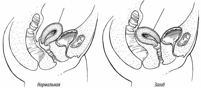 Загиб матки и беременность: шансы на зачатие, методы лечения / mama66.ru