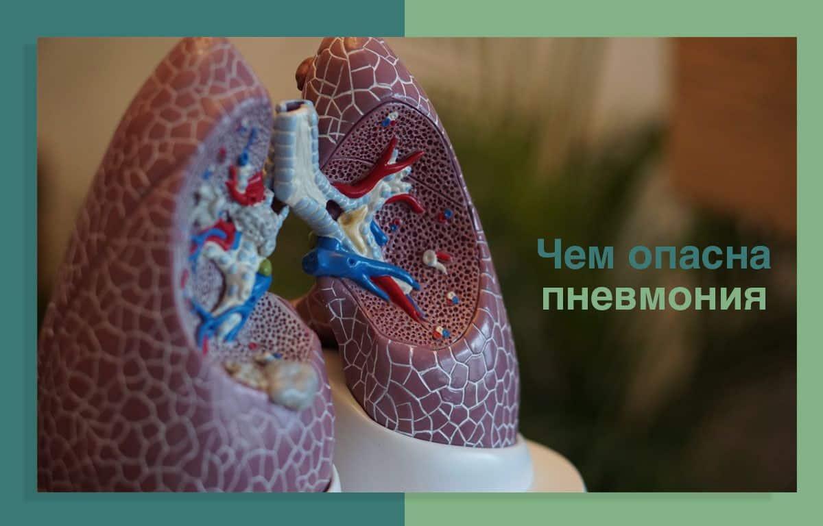 Аускультация как метод диагностики пневмонии
