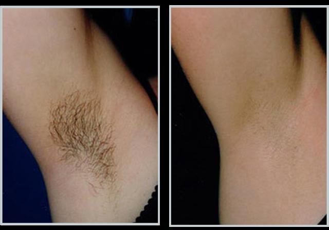 Особенности применения риванола для удаления волос