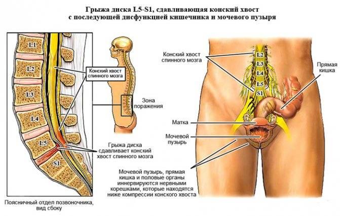 Множественные грыжи шморля поясничного отдела позвоночника лечение