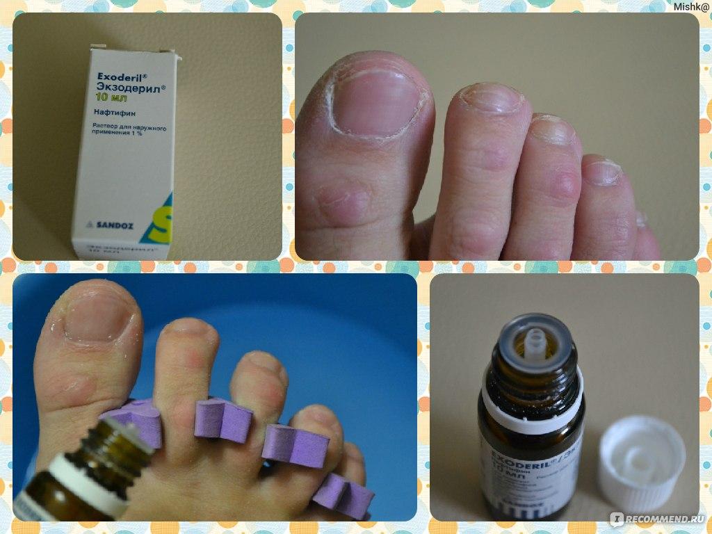 Экзодерил от грибка ногтей