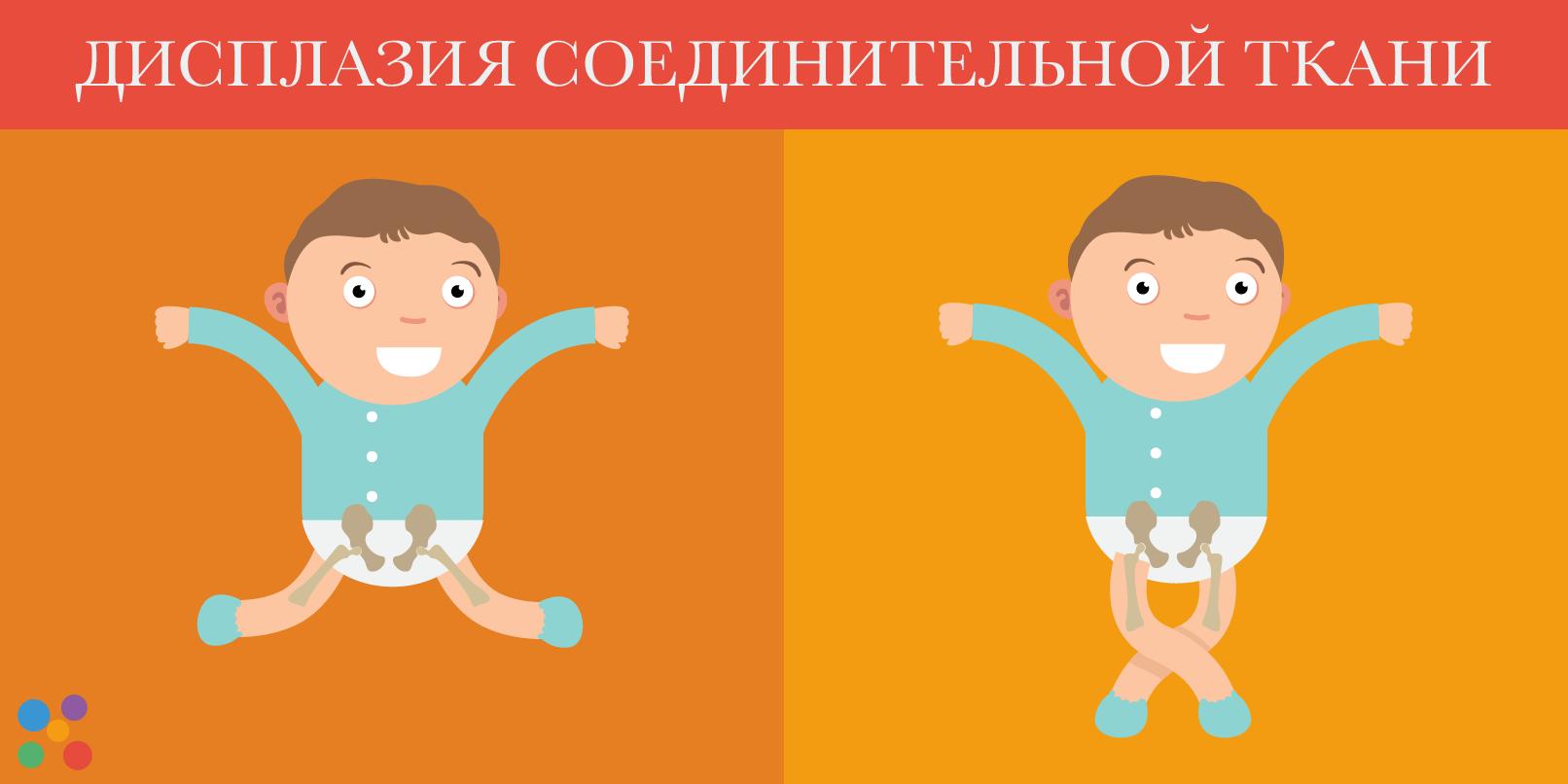 Дисплазия соединительной ткани у детей: симптомы и лечение