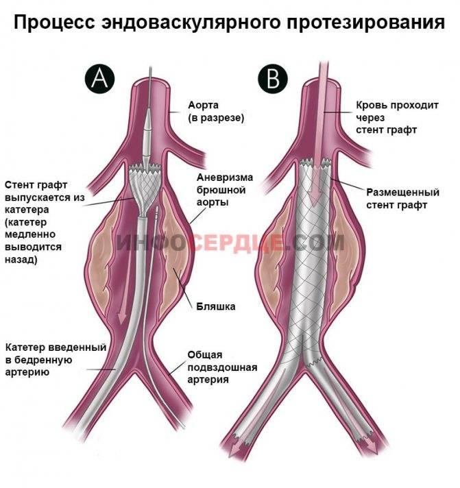 Аневризма брюшного отдела аорты: причины, симптомы, лечение