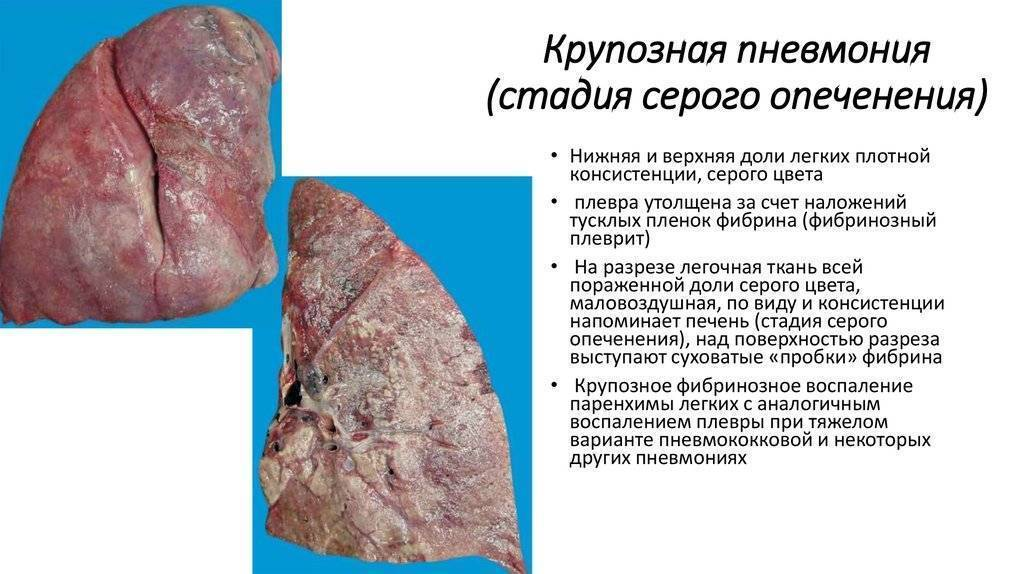 Особенности лечения крупозной пневмонии